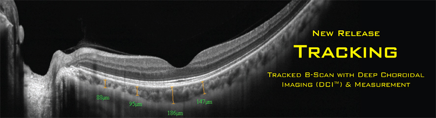 tracking oct optovue retina choroid