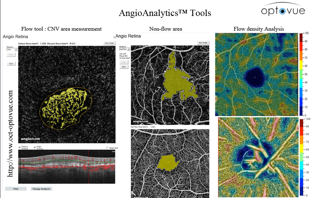 angioanalytics blood-flow area measurement