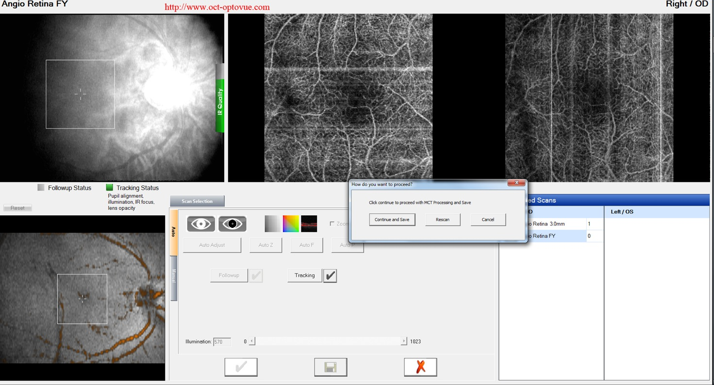 dualtrac optovue motion correction oct-angiography