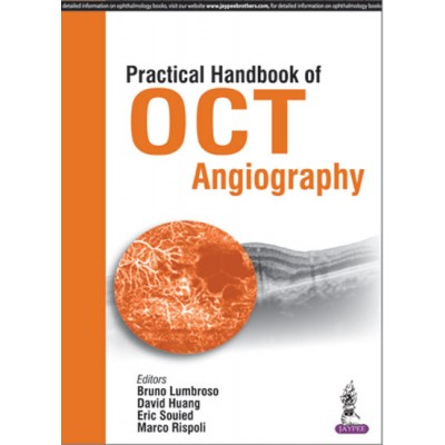 practical handbook of oct angiography lumbroso 2016