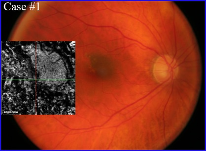 nevus-oct-angiography-304