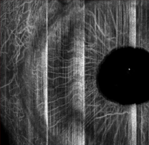 oct-angiography iris cornea