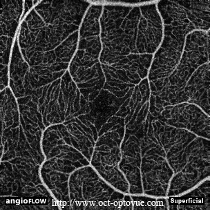 superficial retina angio oct muratet pamiers france